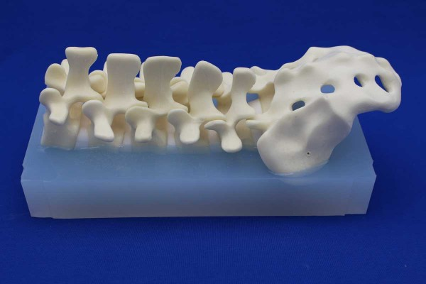 POSTERIOR LUMBAR SPINE INCLUDED ELASTOMER