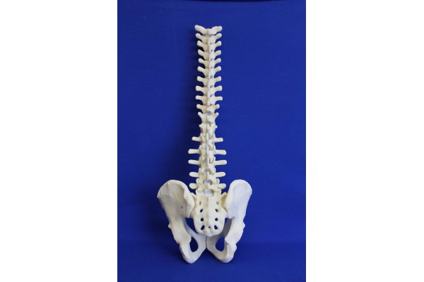 SPINE T1/SACRUM AND PELVIS SOLID FOAM