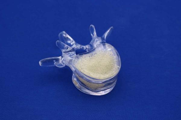 Clearbone Lumbar L4 corticale transparente avec insert spongieux