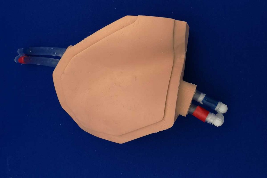 Consumable echogen ECMO femoral right or left